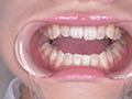 桐山結羽ちゃんのとっても貴重な歯・口内・舌フェチ動画のサムネイルエロ画像No.5