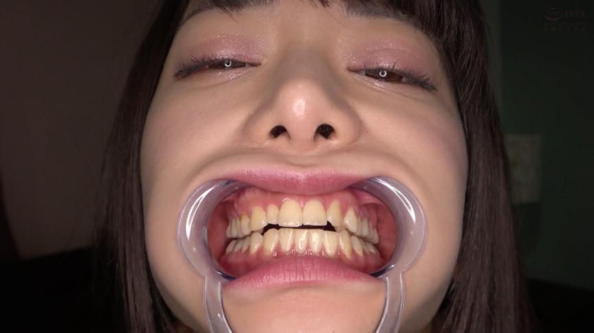 有村のぞみチャンの歯・口内観察&クリスタル棒舐め! 画像 2