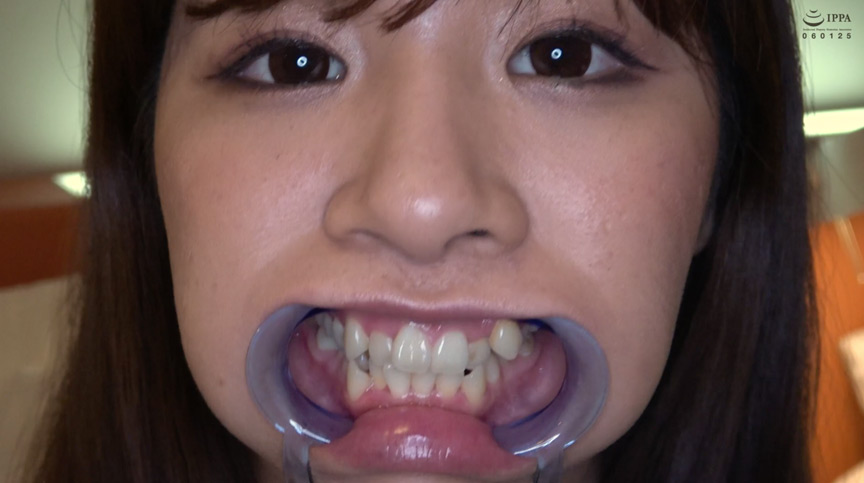 真白わかなチャンの激レアな歯・口内・のどちんこ観察! 画像 5