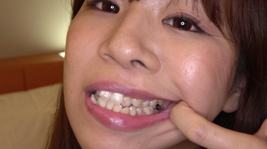 真白わかなチャンの激レアな歯・口内・のどちんこ観察! 画像 17
