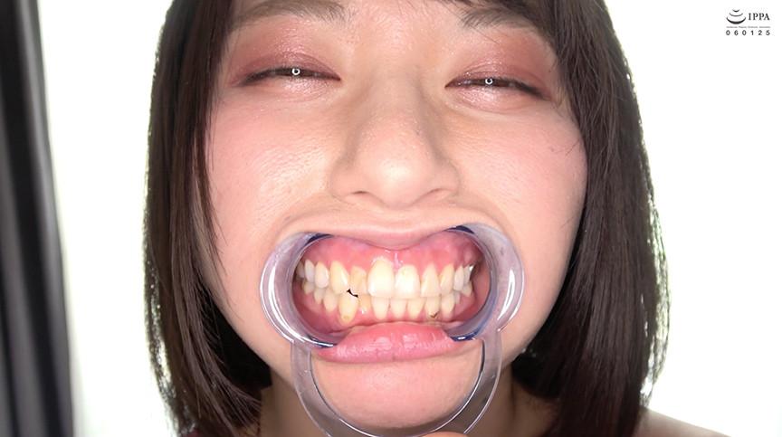 新人AV女優 霜月まどかチャンのはじめての口内・歯観察 画像 2