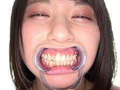 口腔:新人AV女優 霜月まどかチャンのはじめての口内・歯観察
