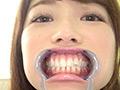 大人気女優 宮沢ちはるチャンの超激レア歯・口内フェチ作品!...thumbnai12