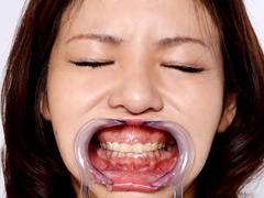 フェチ:歯12