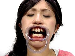 フェチ:歯13