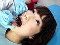[fetishjapan-0818] 歯フェチ!処置室 ゆうこちゃん 銀歯がキラリ 大橋優子