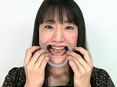 フェチ:歯フェチ!レア美熟女の銀歯観察 優奈