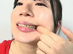 フェチ:銀歯フェチ!口内歯観察 安達まどか
