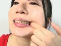 銀歯フェチ!口内歯観察 安達まどか-1