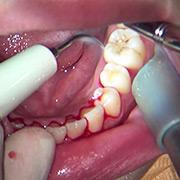 ガチ歯科治療歯周病?歯肉縁下歯石除去 星野桃子