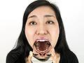 [fetishjapan-0881] 銀歯フェチ歯観察 由香里さんの口内 酒井由香里