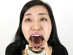 口腔:銀歯フェチ歯観察 由香里さんの口内