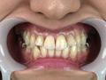 銀歯フェチ歯観察 由香里さんの口内のサムネイルエロ画像No.1