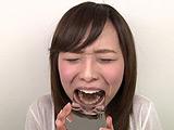 エリナちゃんの歯観察 『左上5番:涙の崩壊歯』 【DUGA】
