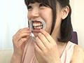歯観察レズ「小春」と「未来」止まらない百合レズキスのサムネイルエロ画像No.6