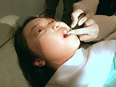 歯フェチ!本物の歯治療映像【抜歯】 ミランダ