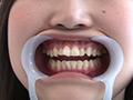 歯フェチ!本物歯治療映像虫歯掘削処置 堀越まきのサムネイルエロ画像No.1