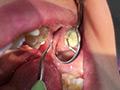 歯フェチ!本物歯治療映像虫歯掘削処置 堀越まきのサムネイルエロ画像No.4