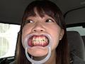 歯フェチ!本物歯科治療映像 井野紅葉のサムネイルエロ画像No.1