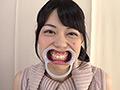 歯フェチ!銀歯観察 桜庭うれあ