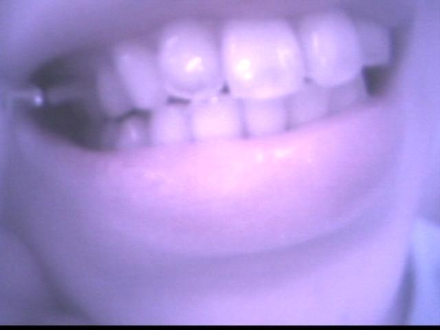 歯~ぶらしできたかな? vol.2 の画像14