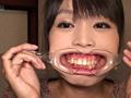 GRAV-001 口腔羞恥!! 素人歯科淫診 素人OLの小春ちゃん編 無料画像5
