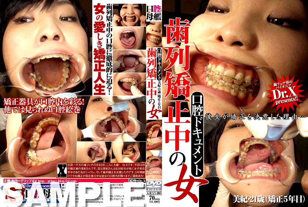 フェチ:口腔ドキュメント 歯列矯正中の女 美紀・21歳