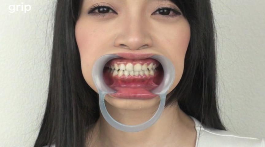 虫歯&銀歯観光!!顔舐め咀嚼ツアー 瀬戸友里亜 の画像14
