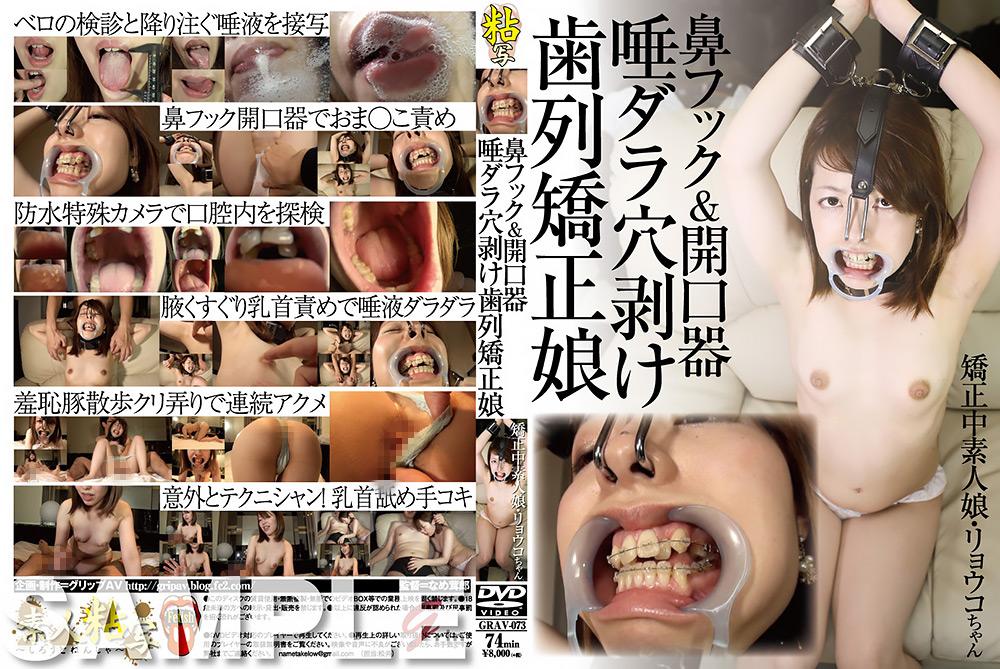 鼻フック&開口器 唾ダラ穴剥け歯列矯正娘