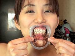 唾液:熟成唾液が滴り落ちる濃厚な顔舐めと口腔歯科不倫