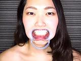 銀歯4本&矯正具付き口腔視姦と咀嚼顔舐め接吻
