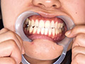 GRAV-254 銀歯&親知らず!!口腔咀嚼視姦と唾吐き舐め奉仕 無料画像0