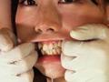 鼻フック&開口器で口腔デストロイ遊び 望月まお【3】