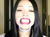 銀歯vs虫歯を発見!ダブル口腔淫診ショー 【DUGA】