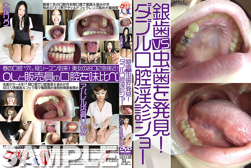 銀歯vs虫歯を発見!ダブル口腔淫診ショー