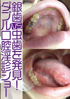 【大塚リク動画】銀歯vs虫歯を発見!ダブル口腔淫診ショー -マニアック