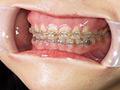 [gripav-0466] 30代から始めた矯正を徹底鑑賞!歯列矯正中の熟女 美保