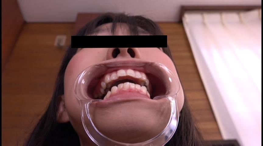 お姉さん達の口の中 口腔観察で感じる女達 画像 7