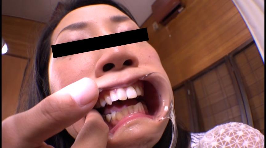 お姉さん達の口の中 口腔観察で感じる女達 画像 8