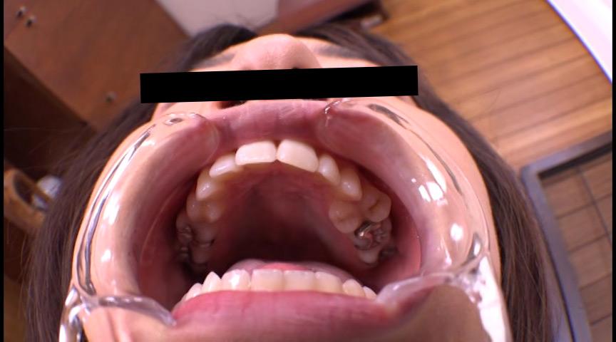 お姉さん達の口の中 口腔観察で感じる女達 画像 9