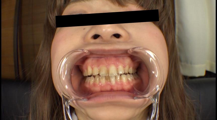 お姉さん達の口の中 口腔観察で感じる女達 画像 12