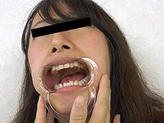 フェチ:歯、痛いですか? 素人娘たちの意識調査