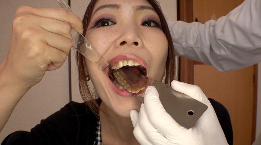 【歯フェチ #19】4K新口腔内観察 ☆えりあちゃん☆【全編】by 口腔仙人(Dr. X)