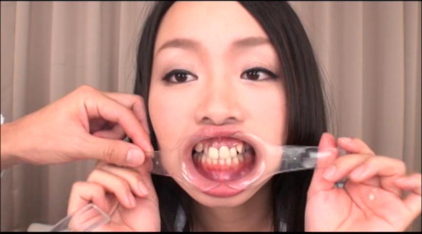 美しい女たちの口腔内観察 画像 2