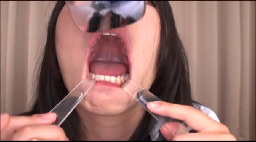 美しい女たちの口腔内観察 画像 5