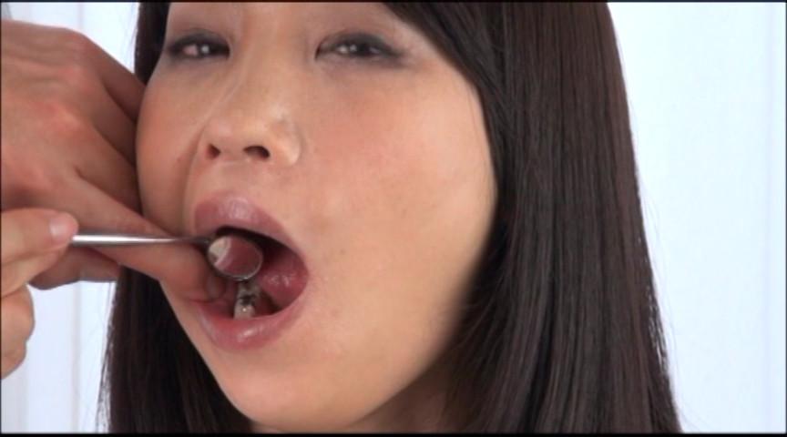 美しい女たちの口腔内観察 画像 9