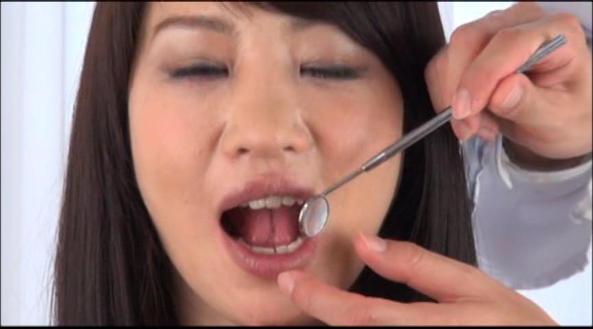 美しい女たちの口腔内観察 画像 10