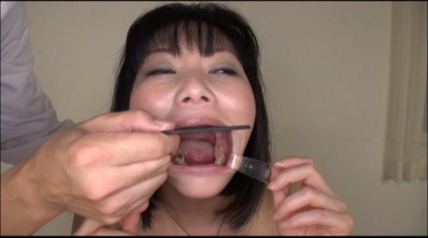 美しい女たちの口腔内観察 画像 20