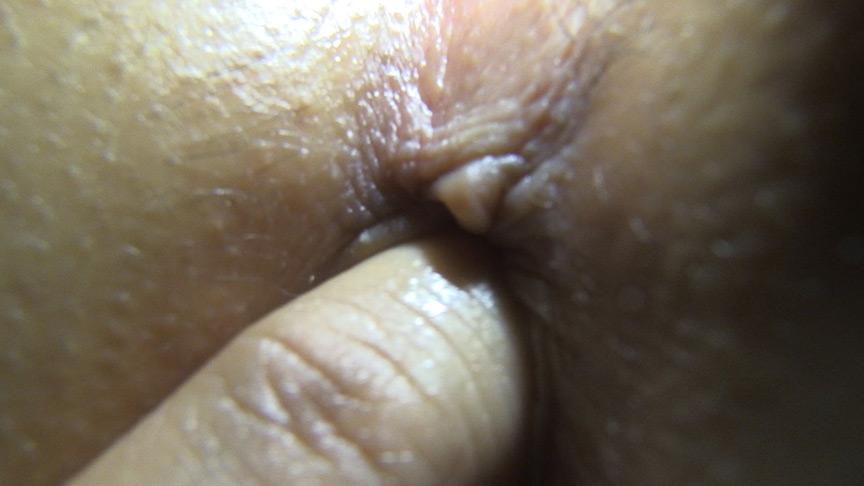 強制肛門こじ開け寝糞 来海るな 画像 9